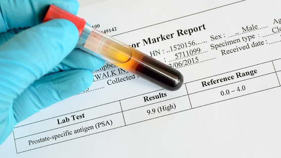 PSA Test: Should You Be Screened?