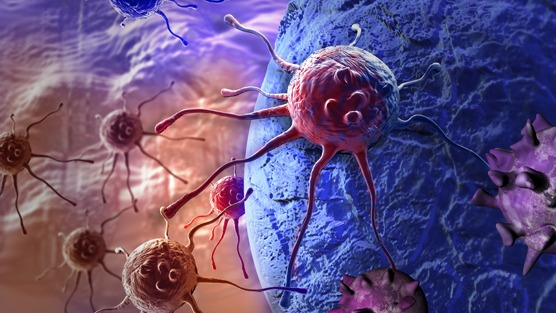 A Link Found Between Two Common Prostate Cancer Treatments May Make It Easier To Destroy Cancer Cells