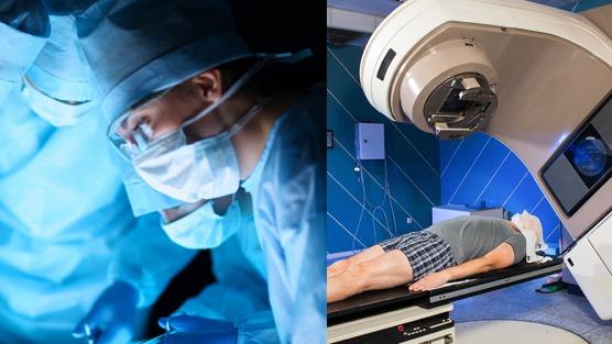 Prostatectomy-Vs-Radiation