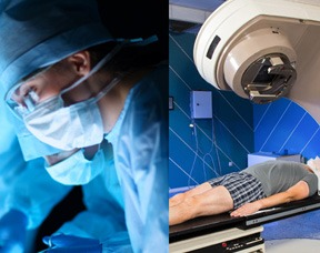 Prostatectomy-Vs-Radiation_Thumbnail