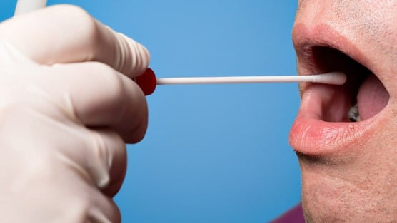 New 10-Minute Saliva Test To Detect Cancer
