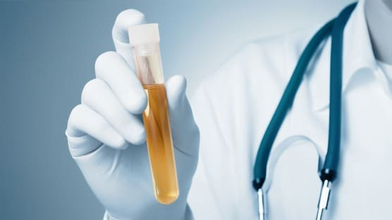New Urine Test Could Be More Accurate In Diagnosing Prostate Cancer