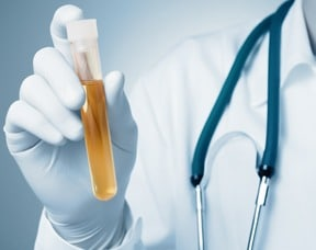 new-urine-test-could-be-more-accurate-in-diagnosing-prostate-cancer_Thumbnail