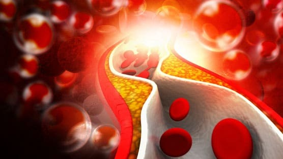 Can Cholesterol Drugs Kill Prostate Cancer Cells?