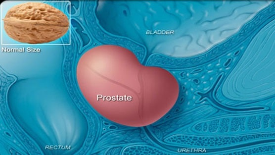 Enlarged Prostate Treatment: TURP vs. GreenLight Laser