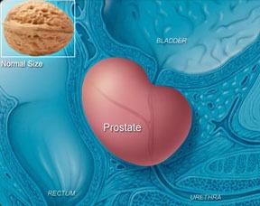 Enlarged Prostate Treatment Turp Vs Greenlight Laser