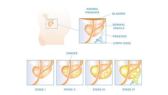 prostate-cancer-staging