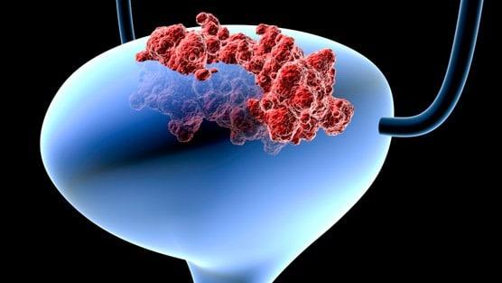 Men With Advanced Bladder Cancer Have High Incidence Of Prostate Cancer – Dr. David Samadi Explains Why