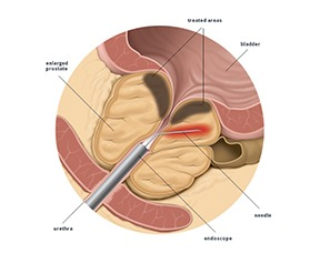 What Is Transurethral Needle Ablation (TUNA)?