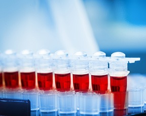 General Tests For Prostatitis Thumbnail