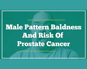Male Pattern Baldness And Risk Of Prostate Cancer – Is There A Link?