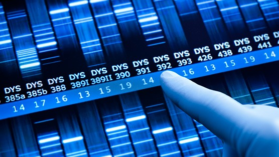Prostate Cancer Genetic Tests are Misinterpreted by Men