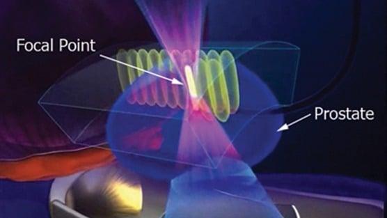 High Intensity Focused Ultrasound (HIFU) Side Effects
