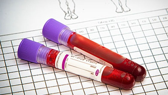 Screening Tests For Prostate Cancer