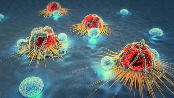 Ribonucleic Acid (RNA) Detection & Testing For Prostate Cancer