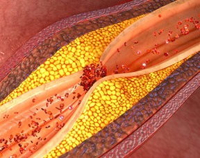 Scientists Say Fat Cells May Aid Prostate Cancer Spread, Resist Medication Thumbnail