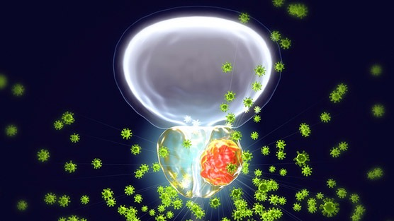 Cancer Drug Xtandi Useful in Multiple Instances, Research Reveals